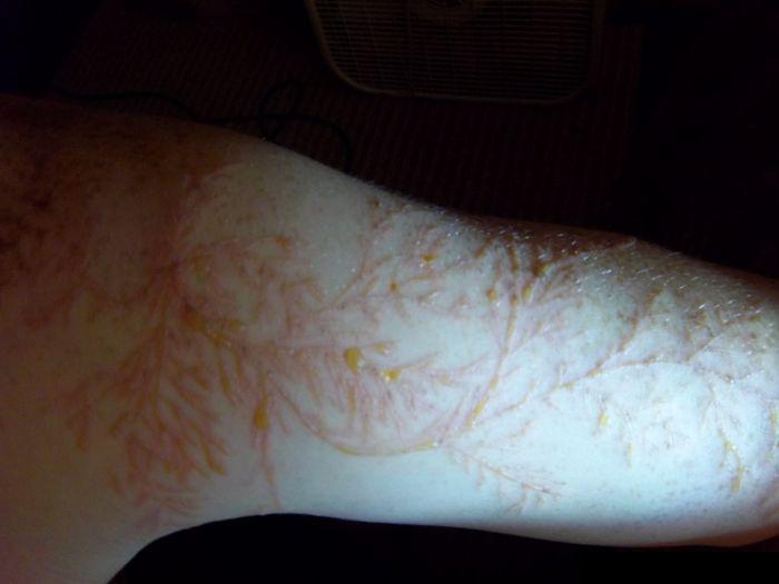 bras-tatoue-eclair-02