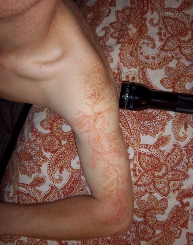 bras-tatoue-eclair-03
