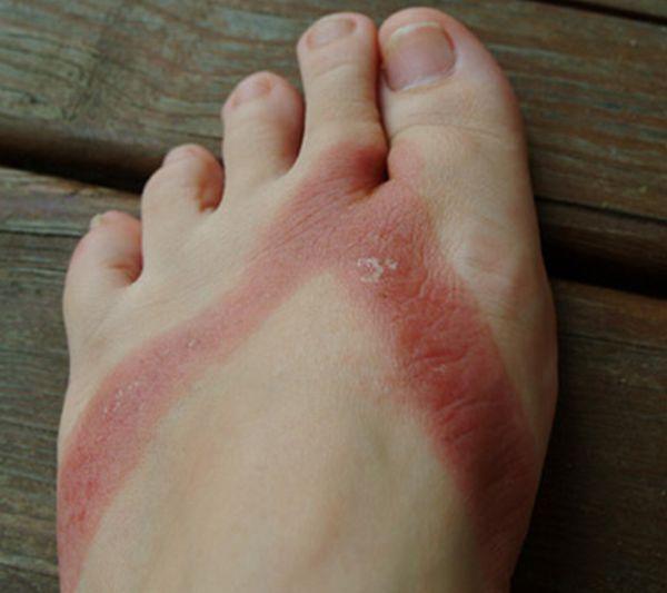 pieds-brules-sandales-chimiques-03