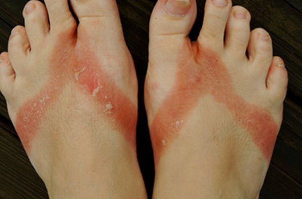 pieds-brules-sandales-chimiques-06