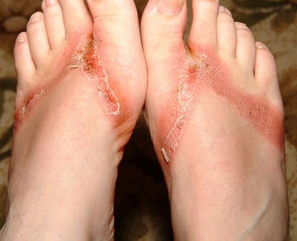 pieds-brules-sandales-chimiques-09