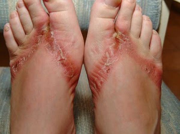 pieds-brules-sandales-chimiques-11