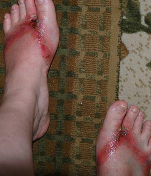 pieds-brules-sandales-chimiques-15