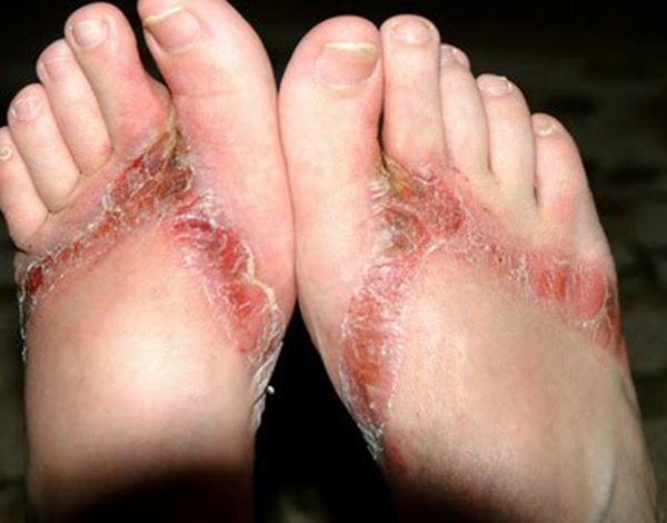 pieds-brules-sandales-chimiques-16