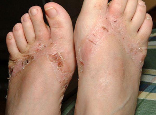 pieds-brules-sandales-chimiques-19