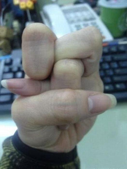 doigts-tordus