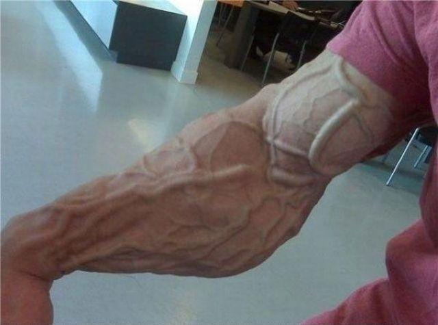 bras-trop-muscle