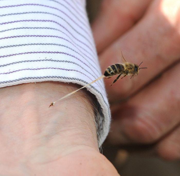 dard-abeille-apres-piqure